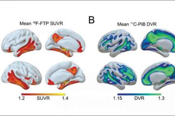 This shows brain scans of the hippocampus during sleep