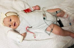 This shows baby Arabella Smygov following gene therapy treatment for SMA
