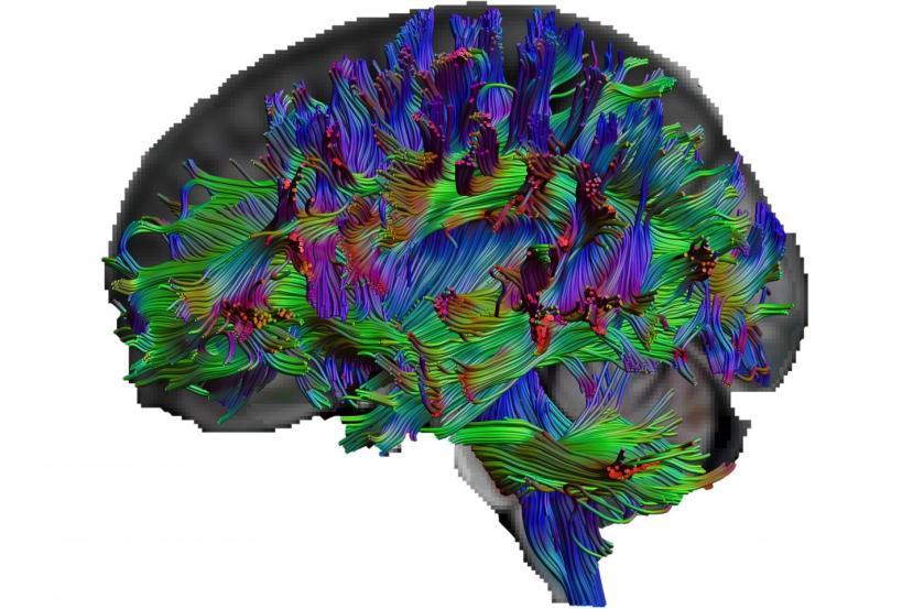 This shows a brain map