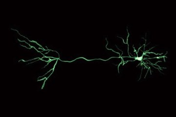This shows a neuron