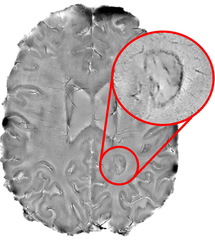 This shows a mark on the brain