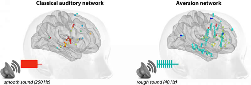 Why is the brain disturbed by harsh sounds? - Neuroscience News
