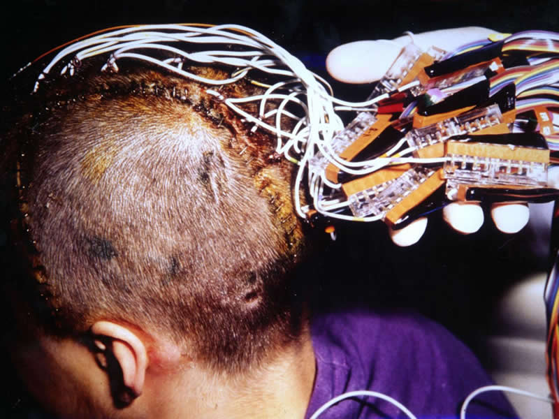 This shows a patient with electrodes on his head