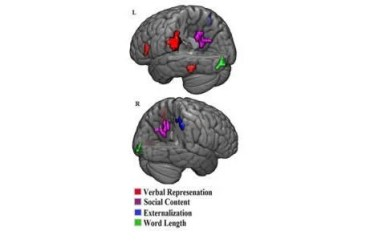 This shows the brain scans