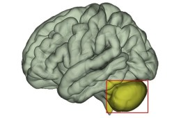 This shows a brain with the cerebellum highlighted