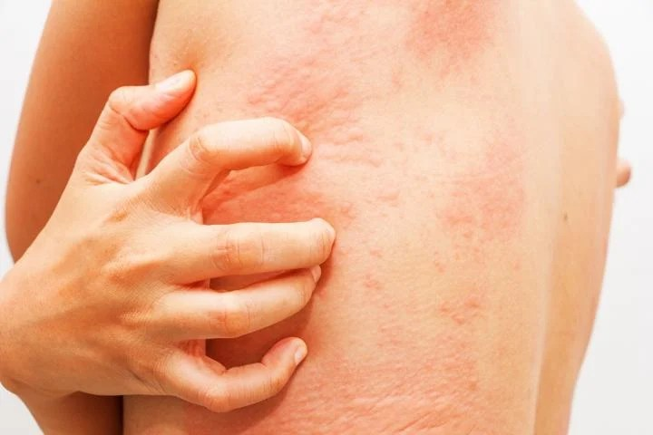 This shows a person with a rash scratching