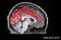 This shows the CSF in the brain during sleep