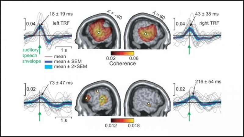 This shows how the brain activity occurs