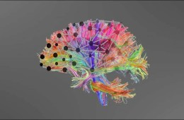This is a drawing of the brain hubs