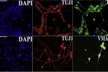 Closeup images of neurons with markers labeled shown.