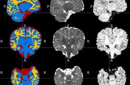 Nine brain images are seen.