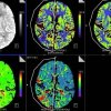 This shows brain scans of a stroke patient