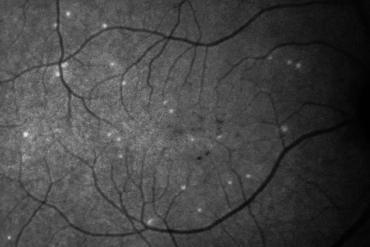 This shows retinal cells