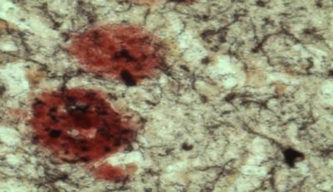 Brain Enzyme is Double Whammy for Alzheimer's Disease ...