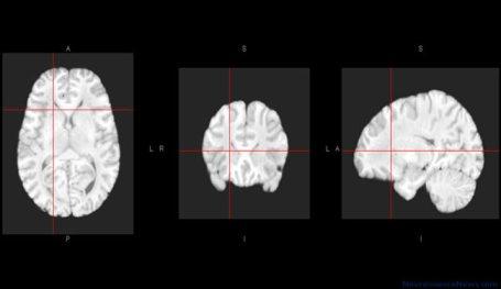 Three human brain atlas views using MRI data are shown.