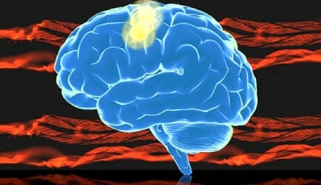 A brain is shown with the motor cortex highlighted.