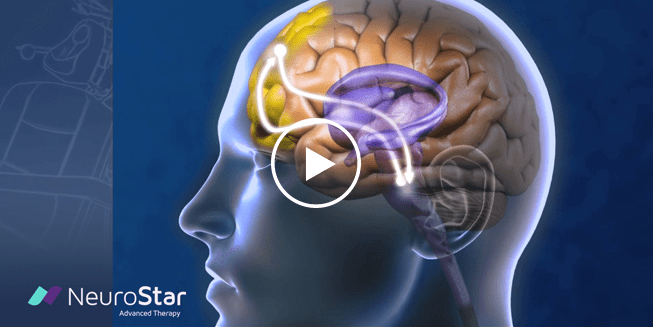 NeuroStar TMS Therapy for Depression