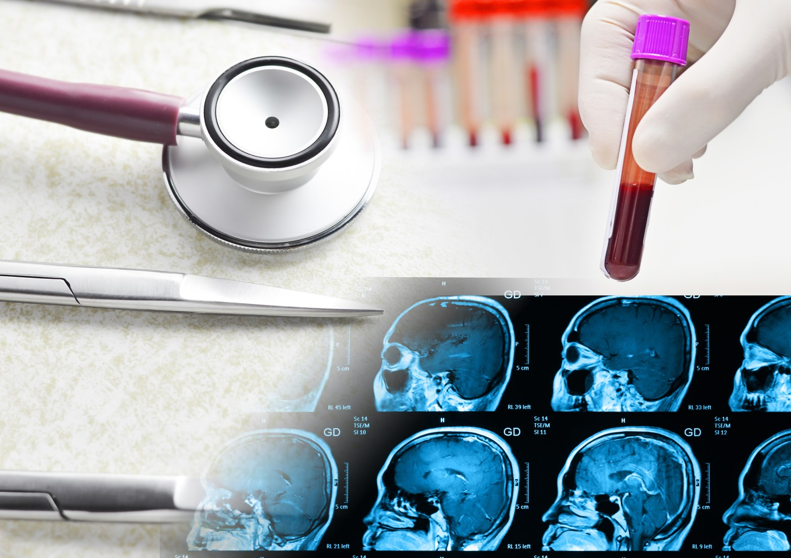 Pituitary tumour diagnosis