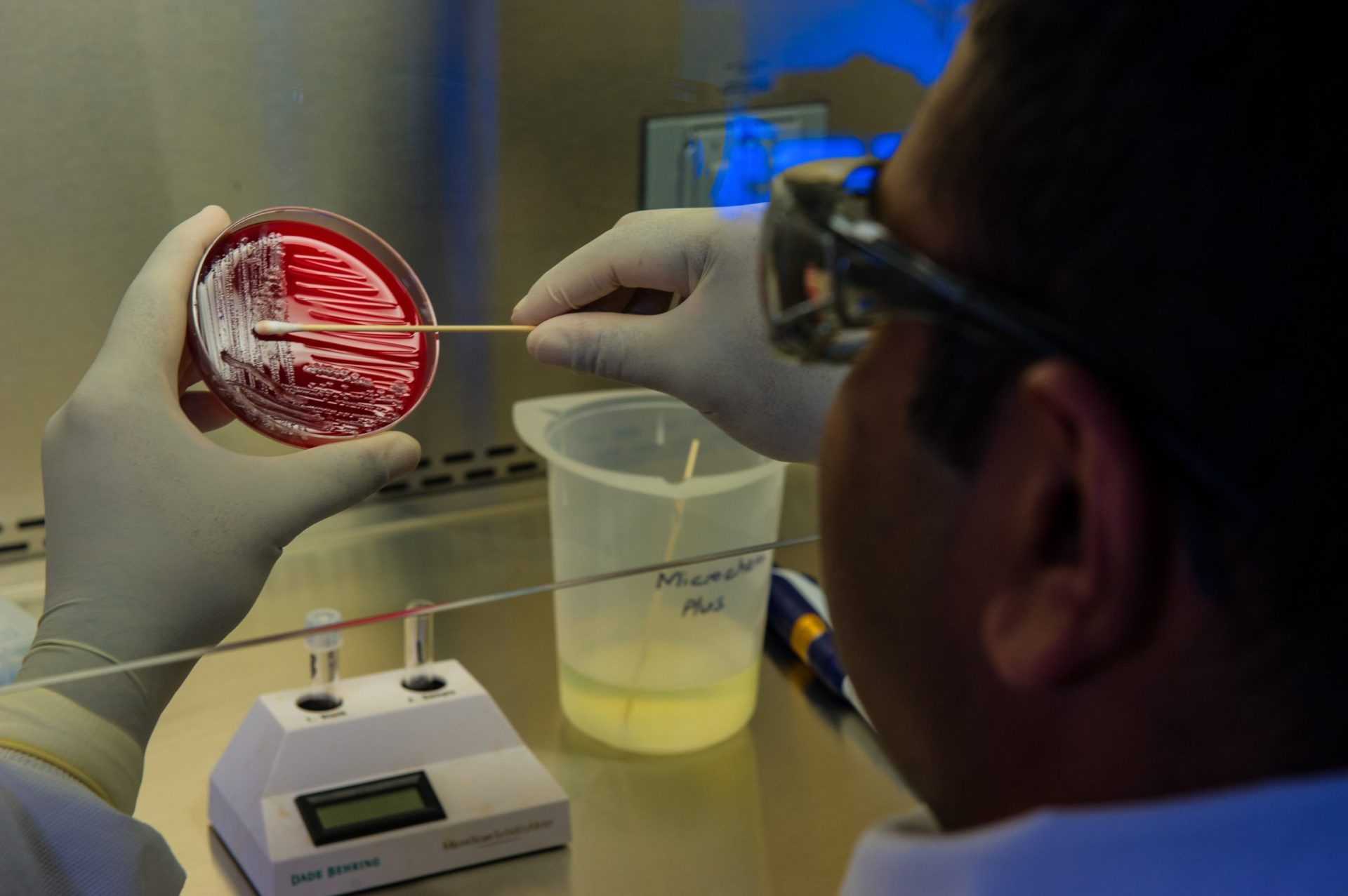 Scientist in lab with bacteria in a petri dish