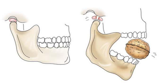 poate pierderea în greutate cauza durerii maxilarului