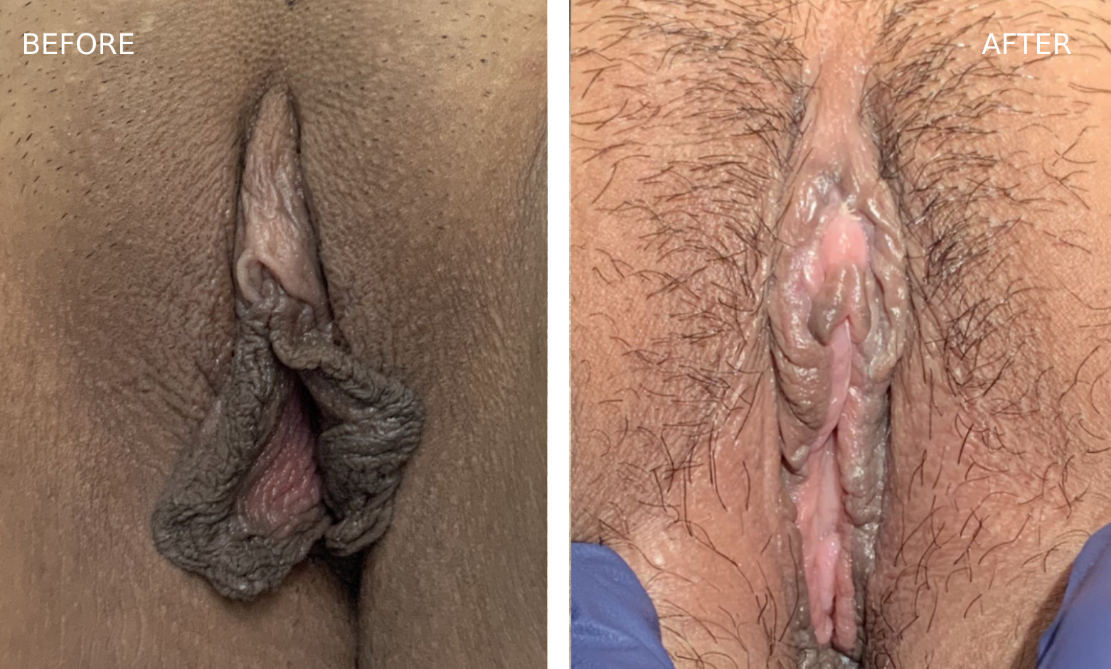 Before & After Labiaplasty