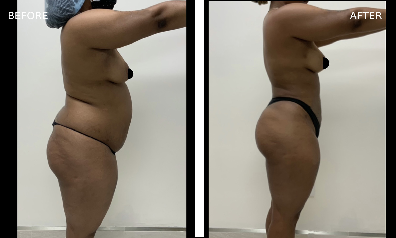 Before & After Body Treatment