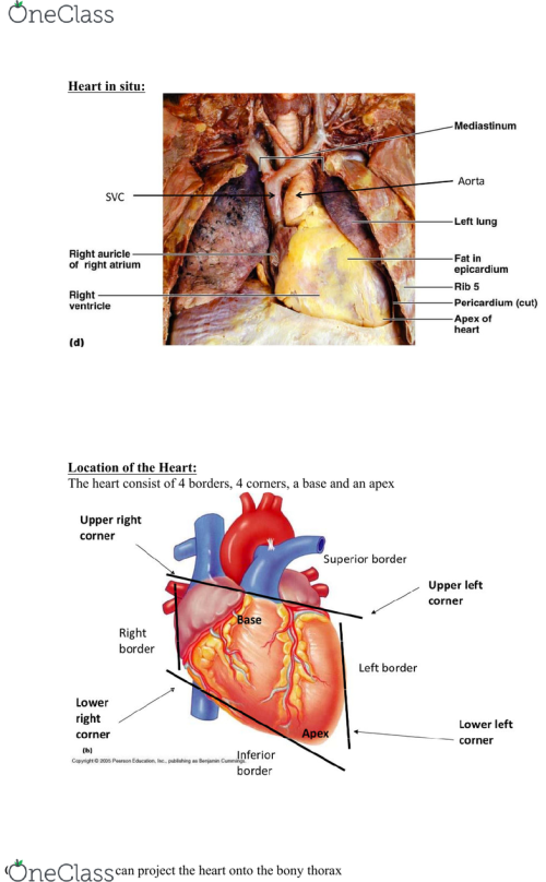 small resolution of heart in situ