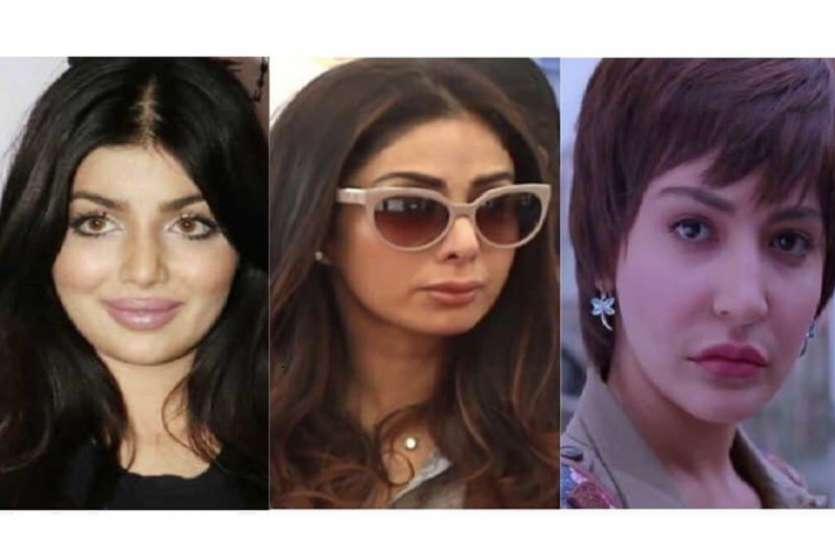 Bollywood Actress Who Have Allegedly Undergone Plastic Surgery