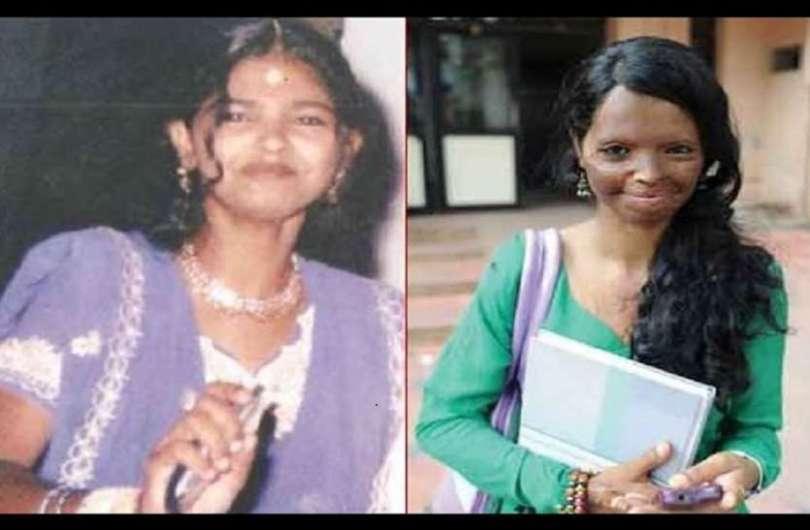 Laxmi Agarwal Before Acid Attack Unseen Pics
