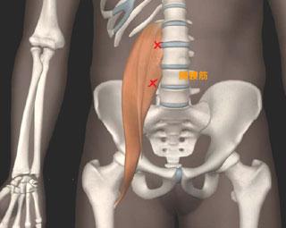 腸腰筋 ×印トリガーポイント