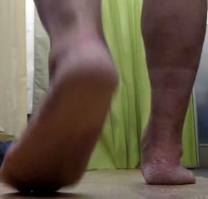 過回内足で後脛骨筋機能不全