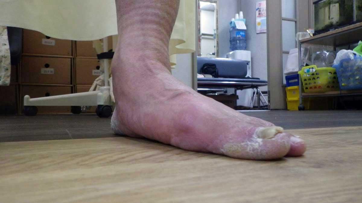 後脛骨機能不全症候群 前から