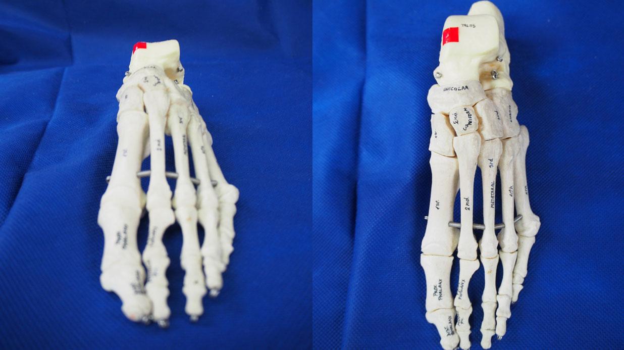 距骨滑車骨軟骨障害(赤い部分が変形)は治りにくい捻挫のひとつです。
