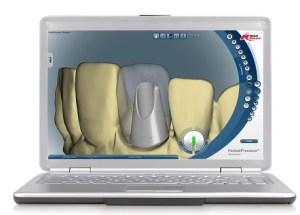 Implant dentaire ordinateur