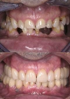 Avant Après - Homme - Implant dentaire, Bridges Zircone et couronnes Céramique