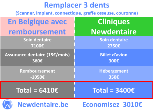 Comparaison du prix pour 3 implants dentaires remboursés en Belgique Vs cliniques newdentaire