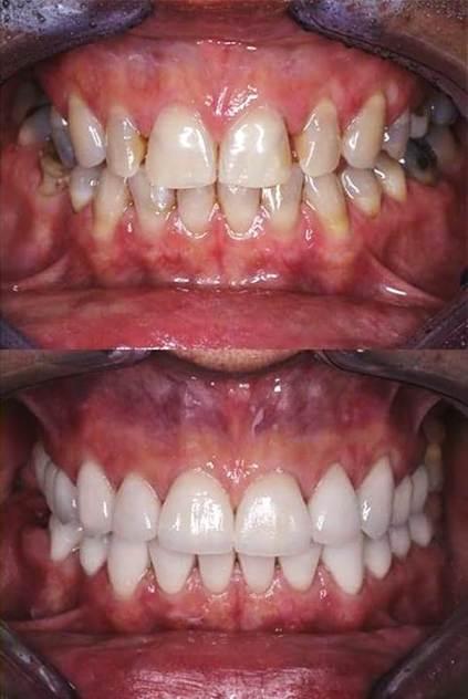 Facette dentaire avant après femme 1