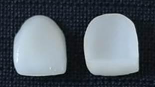 Facette dentaire avant pose