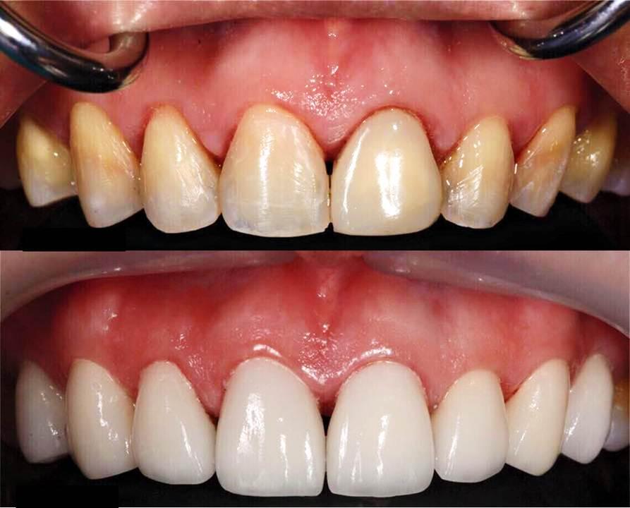 facette dentaire belgique