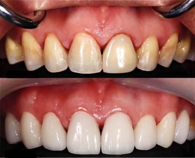 facette dentaire résultat avant après