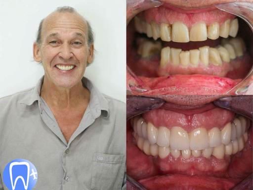 beau sourire après soin dentaire avec couronne céramique en Roumanie