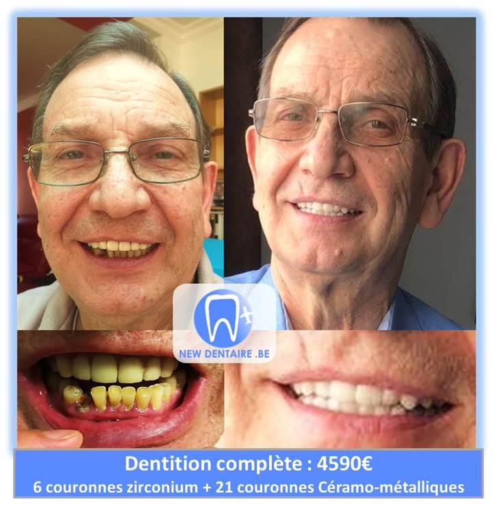 refaire sa dentition pas cher