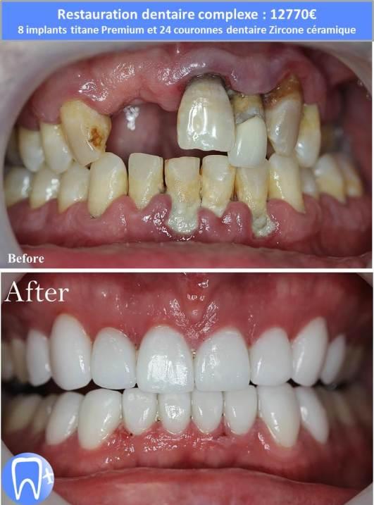 refaire ses dents pas cher implant dentaire