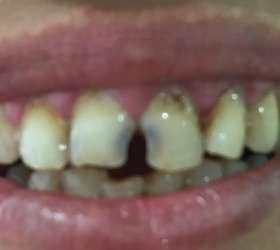 02acucar Doces Estragam os Dentes?