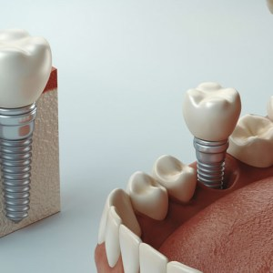 Implante e Cirurgia