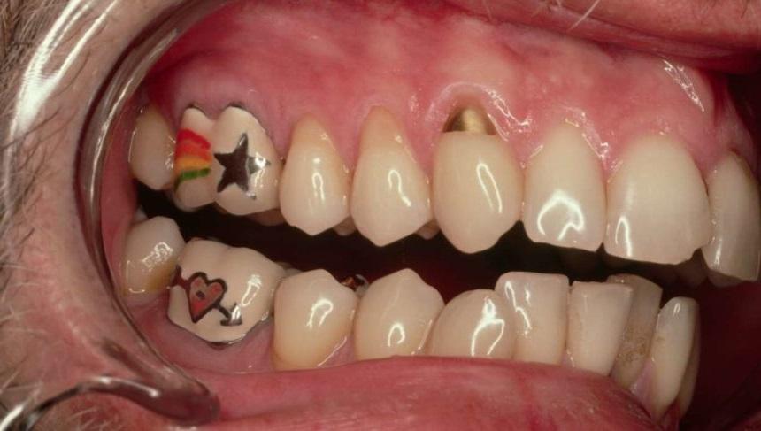 tooth tattoo 860x487 1 Tatuagem Dental,Tatuagem Dental o que é,Tatuagem Dental temporária,Tatuagem