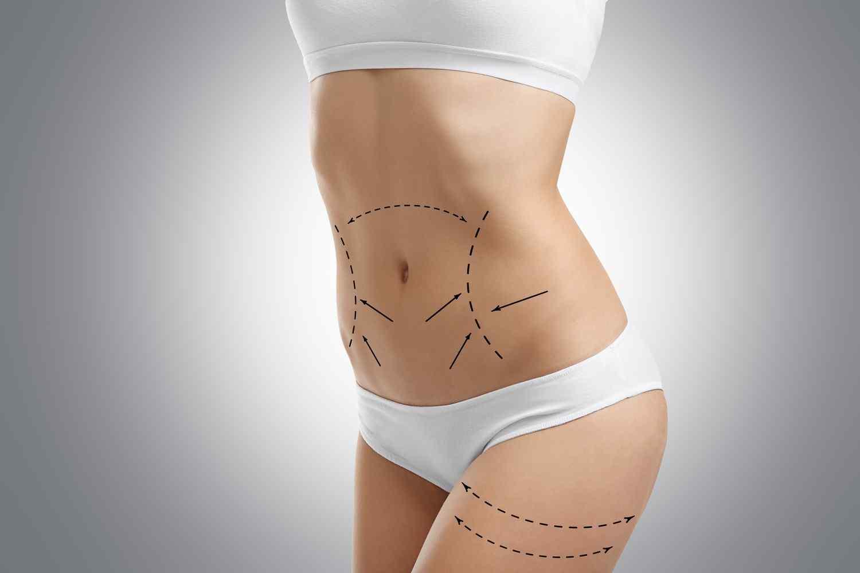 https://i0.wp.com/neweraskin.co.uk/wp-content/uploads/2017/08/cosmetic-surgery-blog-06.jpg?fit=1500%2C1000