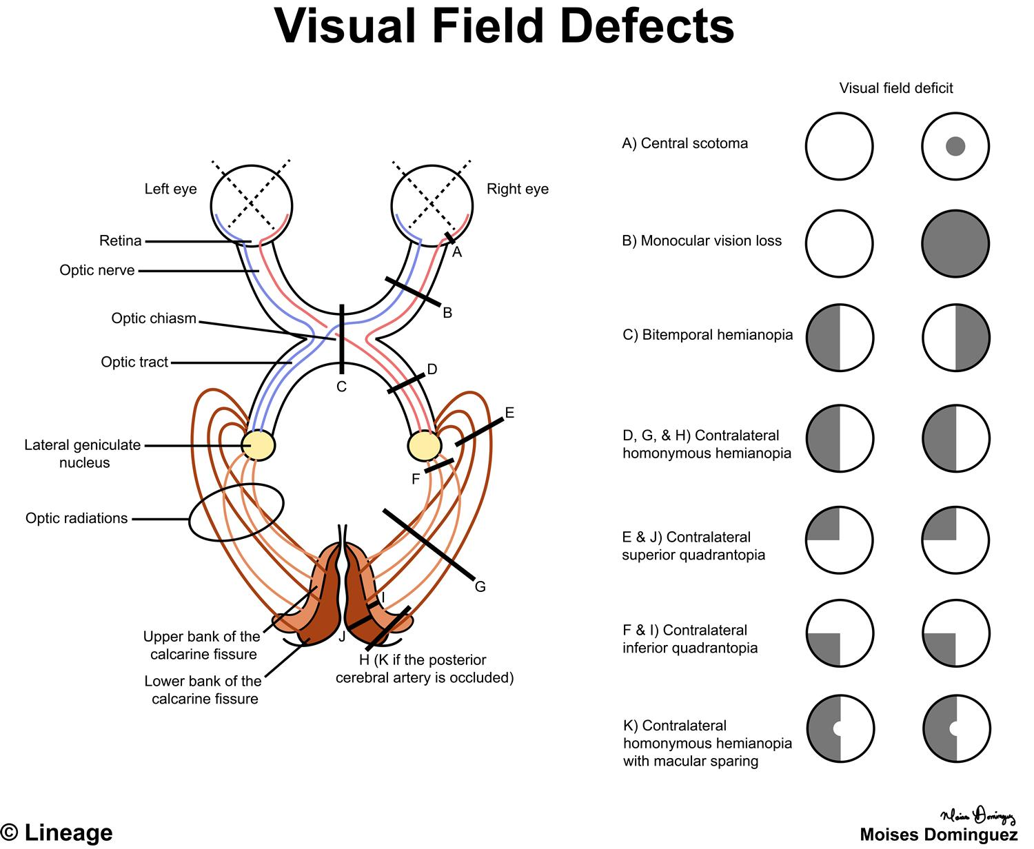 Visual Pathway Defect