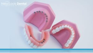 ¿Qué es Snap-In-Dentures?