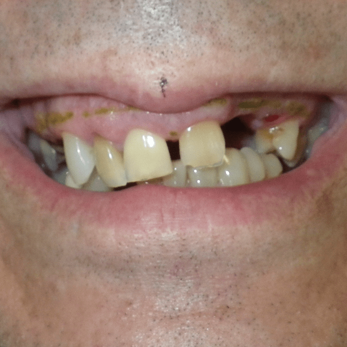 dentista en cancun